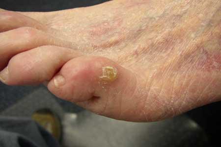 Грибок ногтей на ногах лечение лазером отзывы