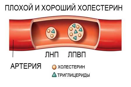 высокий холестерин и билирубин