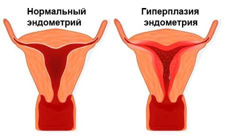 Лечение гиперплазии эндометрия в менопаузе и при климаксе