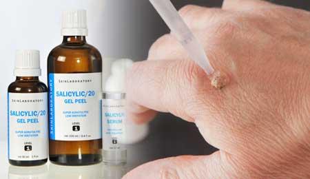 Гомеопатия от появления родинок
