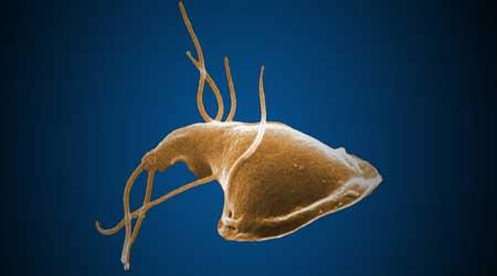 самые опасные паразиты в организме человека видео