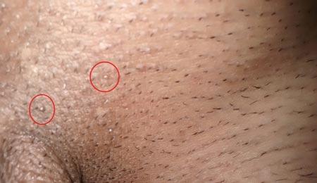 Вирус папилломы человека женщина может заразить