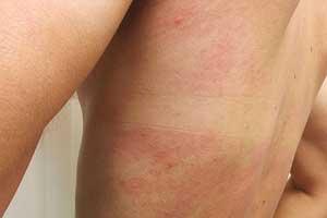 Нетрадиционная медицина лечения аллергии на холод термостат на рено трафик 2.0
