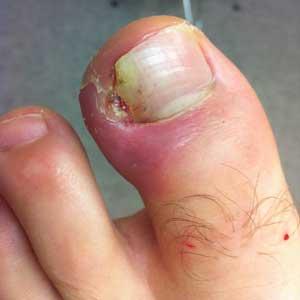 Лекарство от грибка ног недорогое