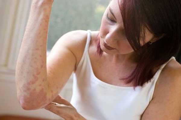 девушка смотрит на правую руку изучает симптомы аллергии на воду