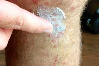 Крем с гидрокортизоном, чтобы помазать укус комара, чтобы не чесался