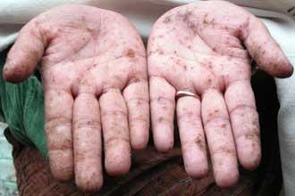 Симптомы отравления ртутью после контакта с кожей