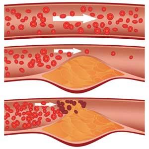 Атеросклероз: общие факты про заболевание