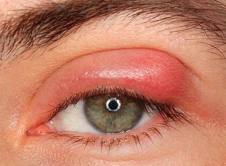 как получить ячмень на глазу