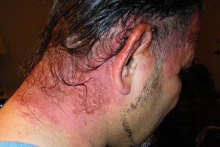 Можно красить волосы при аллергии на краску