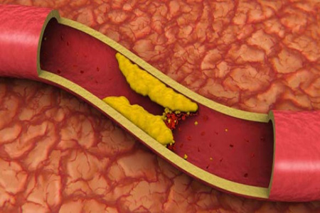 как принимать статины при диабете