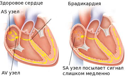 Симптомы глистов у детей 5 лет как лечить