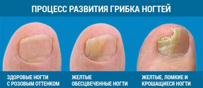 Народные средства от грибка на ступнях
