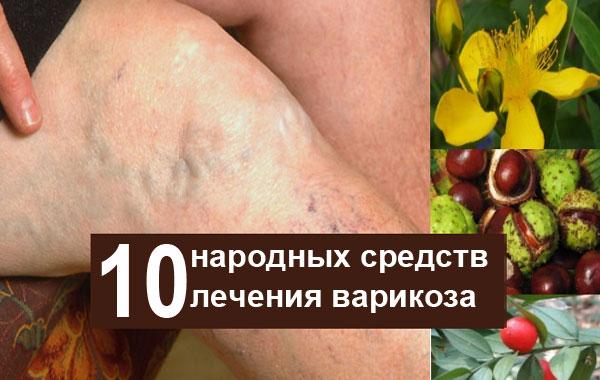 10 лучших народных средств лечения варикозного расширения на ногах