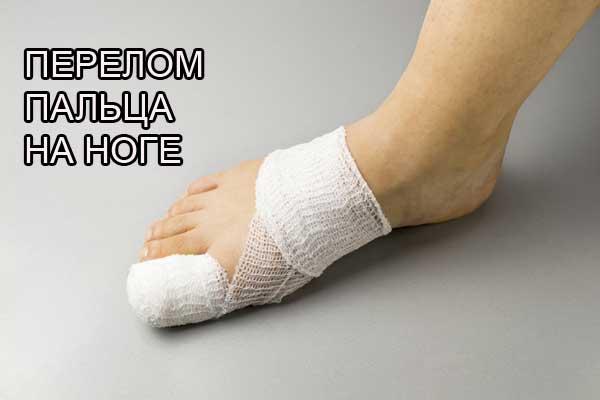 Портал Московская медицина -— что делать после перелома пальца на ноге