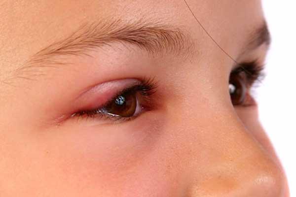 Комар укусил в глаз - опухло верхнее веко