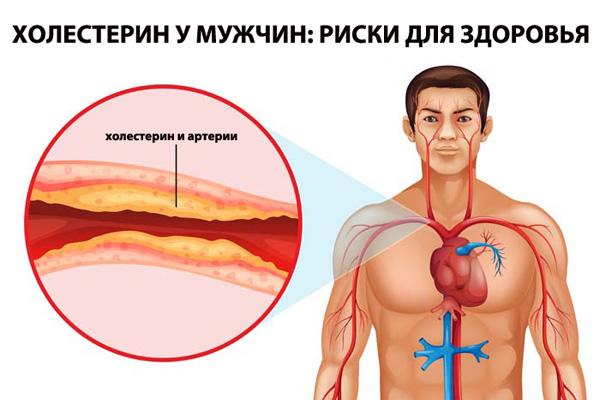 Чем опасен высокий уровень холестерина в крови у мужчины