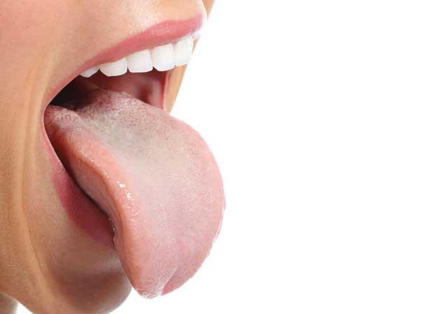 Инфекции полости рта