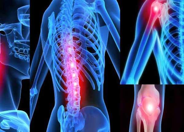 Как лечить артрит
