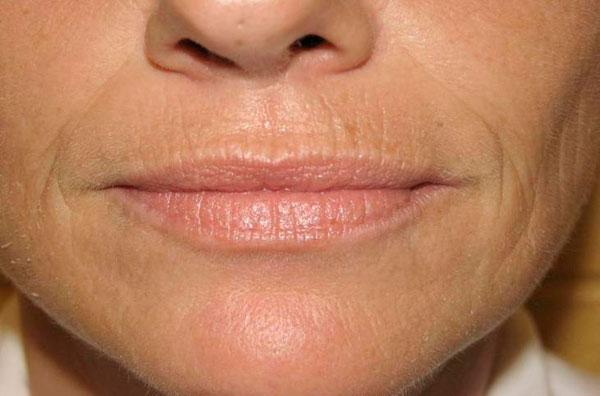 Морщины вокруг губ