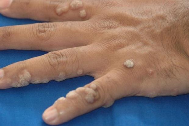 бородавки между пальцев