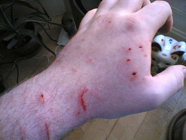 укус кошки последствия