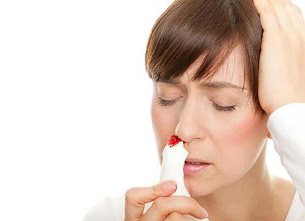 как лечить кровотечение из носа