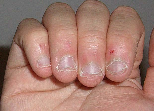 слабые ногти ребенка