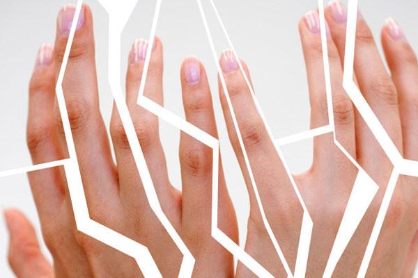 почему трескается кожа на руках и как с этим бороться