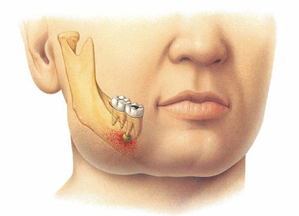 Острый периодонтит: лечение, симптомы, клинические признаки