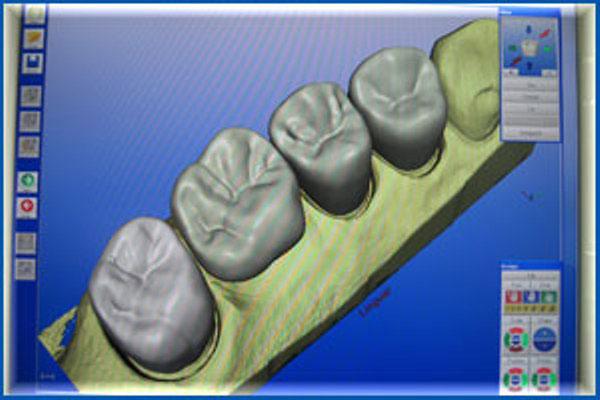Зубные протезы: компьютерное моделирование