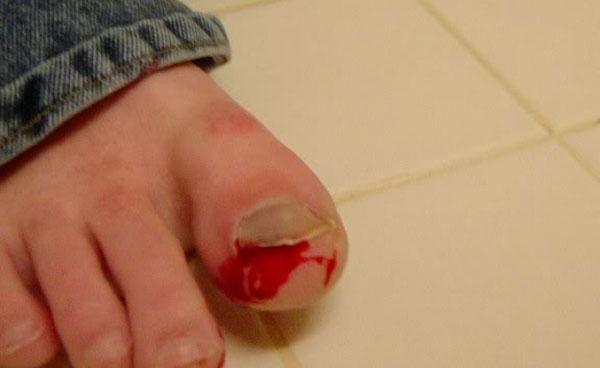 Распространенные травмы ногтей