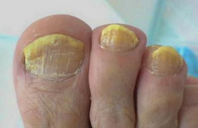 Грибок на ногтях ног: лечение народными средствами