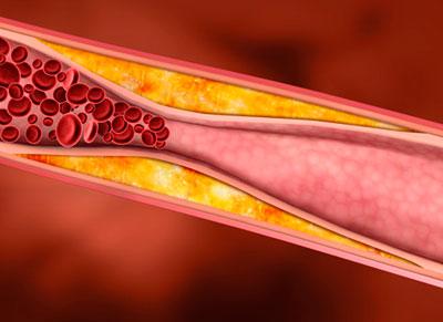 холестерин липопротеинов высокой плотности лпвп норма