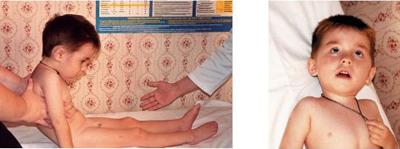 у грудничка с рождения гипотонус подходит
