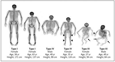 несовершенный остеогенез фото