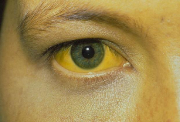 Распространенные вопросы про желтуху