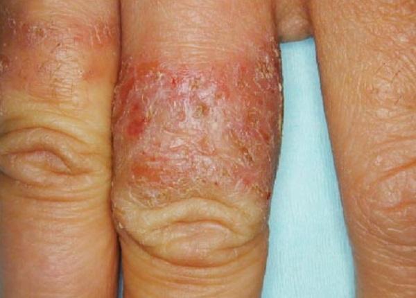 Симптомы и лечение себорейного псориаза