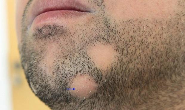 Как удалить волосы с бороды у женщины в домашних условиях