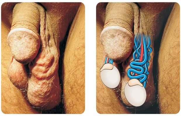 фото варикоцеле у мужчин