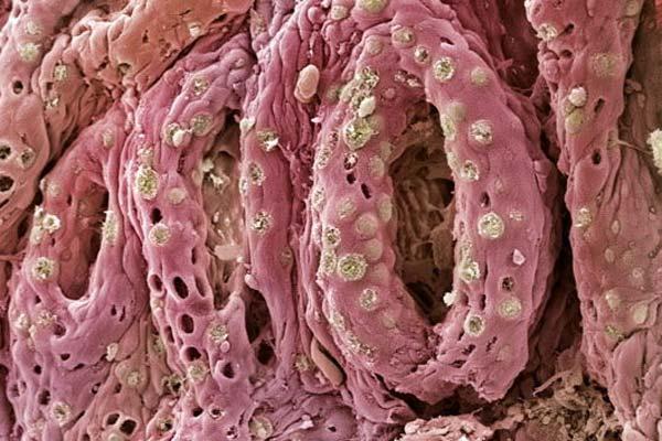 Симптомы колита кишечника у женщин