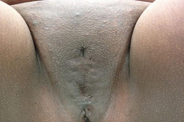 Обрезание клитора