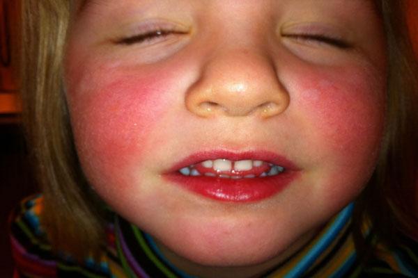лицо красное после ультразвуковой чистки лица