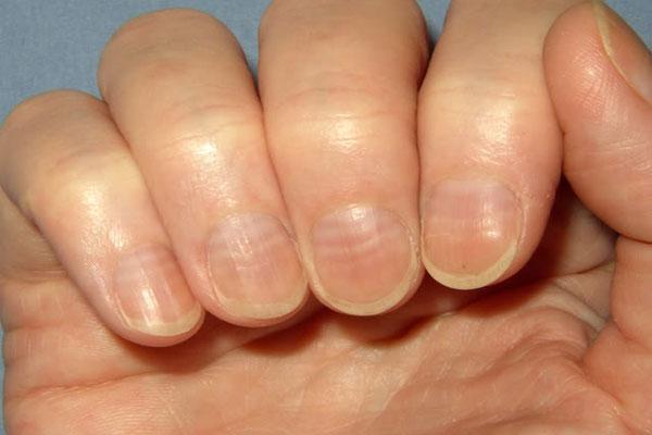 У ребенка волнистые ногти