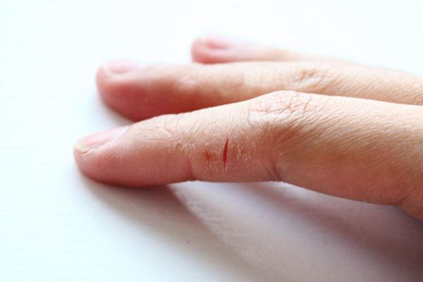 Почему трескается кожа на рук