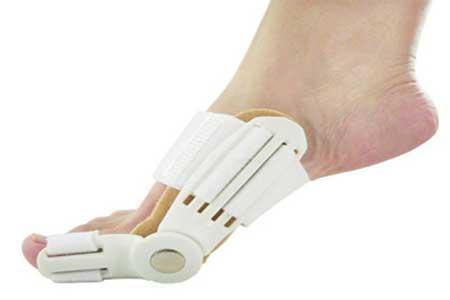 Как избавится от косточки на большом пальце ноги