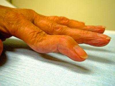 Чем снять боль при ревматоидном артрите