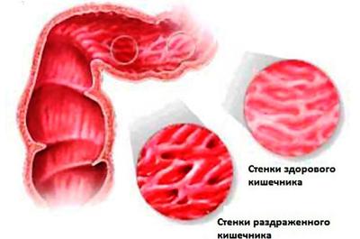 Как лечить травами синдром раздраженного кишечника