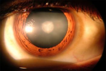 Катаракта в человеческом глазу. Фото из Wikimedia