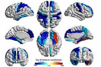 МРТ головного мозга Фото: HEATHER CODY HAZLETT / NATURE